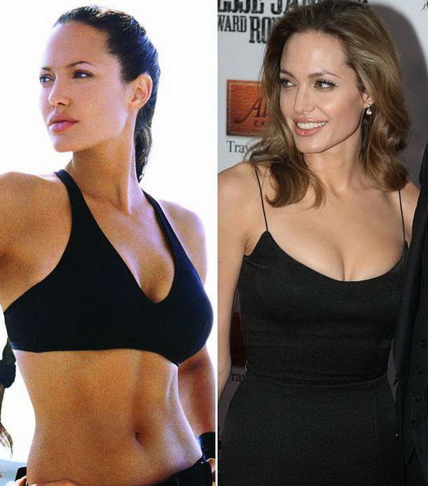 Анджелина Джоли фото до операции