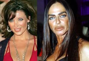 Микаэла Романини до и после пластики