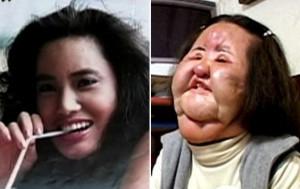 Ханг Миоку до и после