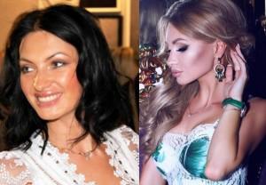 Евгения Феофилактова до и после операции. Фото
