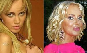 Маша Малиновская до и после пластики. Фото