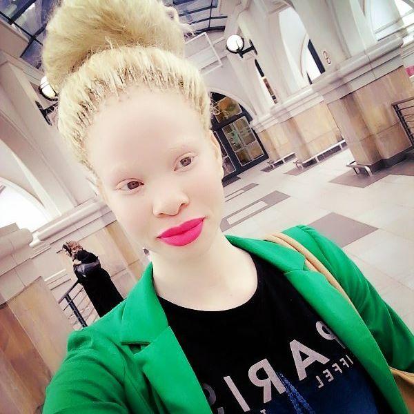 Негритянка альбинос