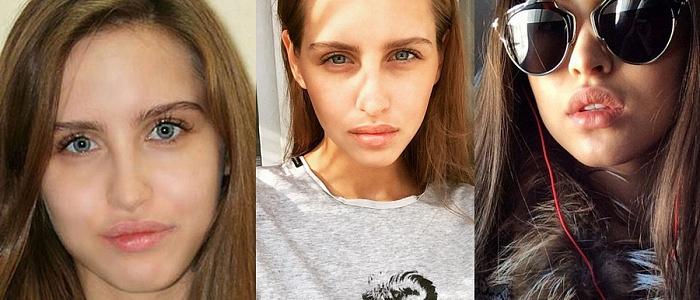 до и после похудения bestdieti