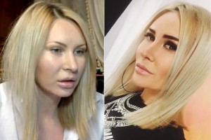 Элина Камирен до и после пластики